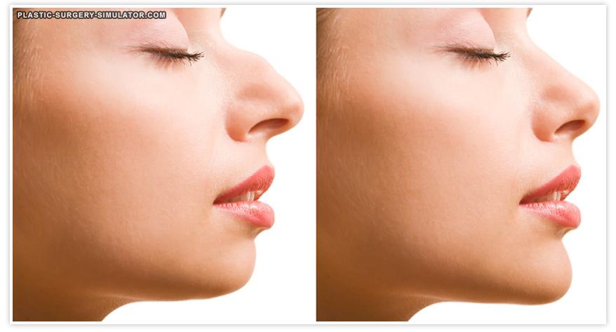 Simulador de cirugía de nariz