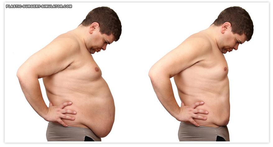 Tummy tuck and weight loss simulator