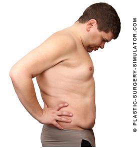 腹部整形シュミレーター