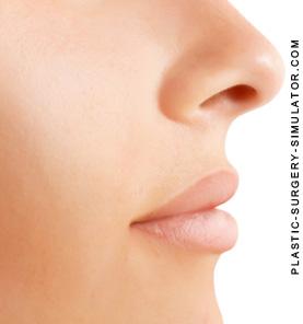 Simulador de aumento de lábios