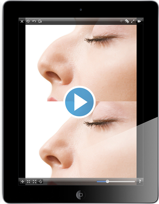 Plastic Surgery Simulator on iPhone and iPad