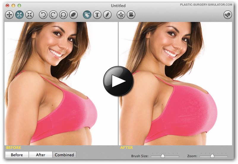 Plastic Surgery Simulator on Mac