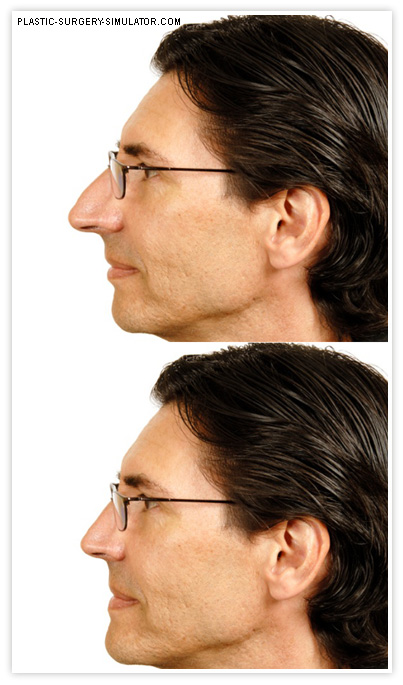 Sample simulated nose job on iOS