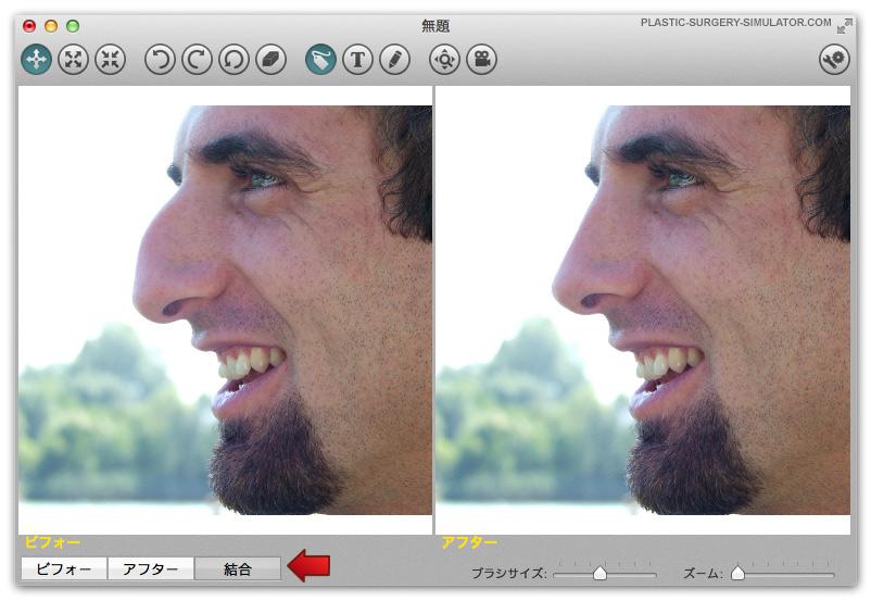 美容整形術シュミレーター  Mac上のタブ