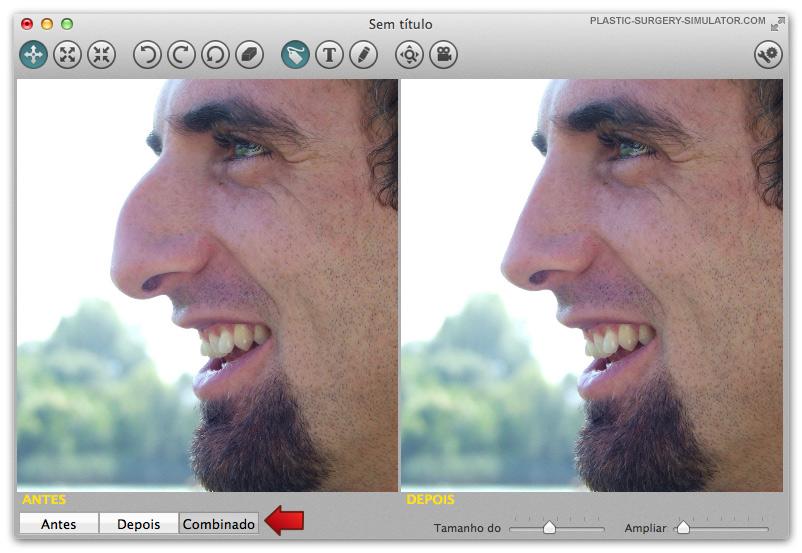 Abas do Simulador de Cirurgia Plástica no Mac